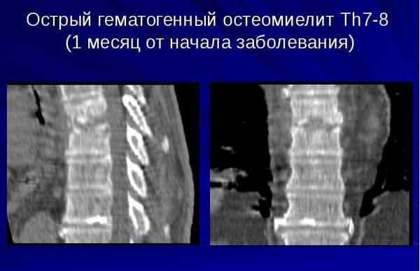 формы заболевания позвоночника