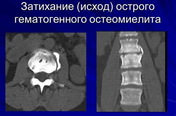 последствия остеомиелита позвоночника