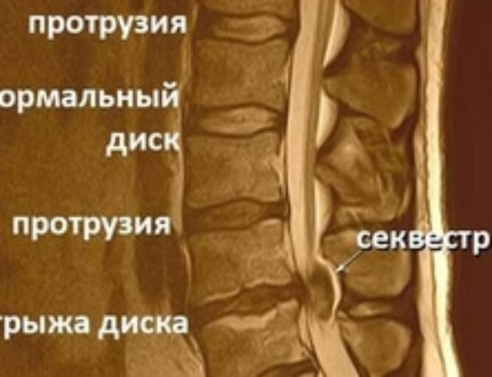 Секвестр грыжи позвоночника и лечение