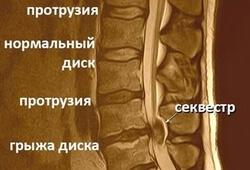 особенности формирования грыжи позвоночника