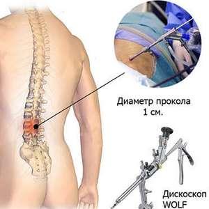хирургическое лечение грыжи