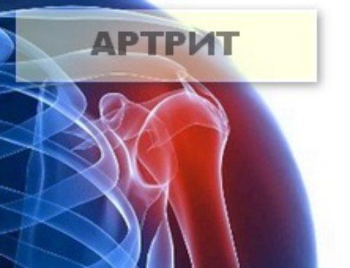 Артрит в лопатках, суставах и руках: как предотвратить дегенерацию сустава