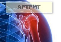 артрит плечевого поса