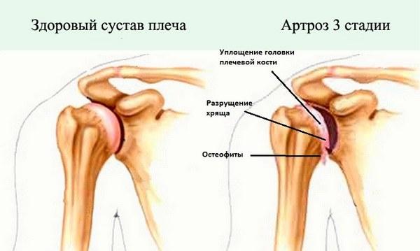 развитие артрита плечевого сустава