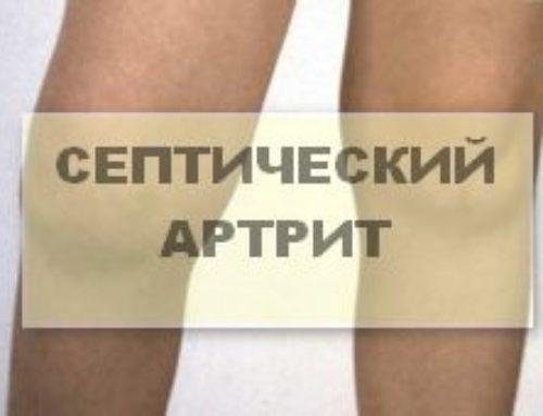 Инфекционный или септический артрит: как избежать осложнений
