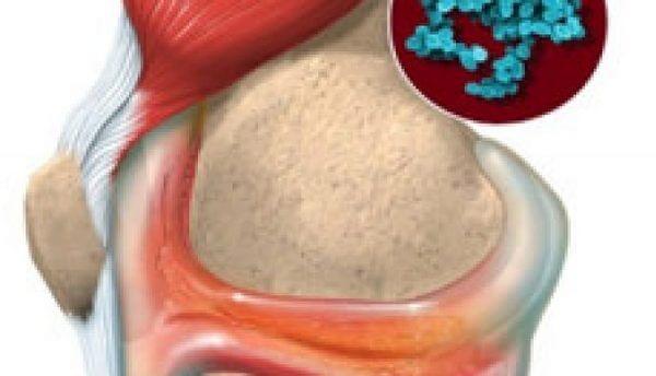 протекание инфекционного артрита