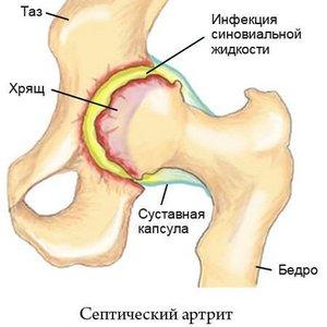 особенности септического артрита