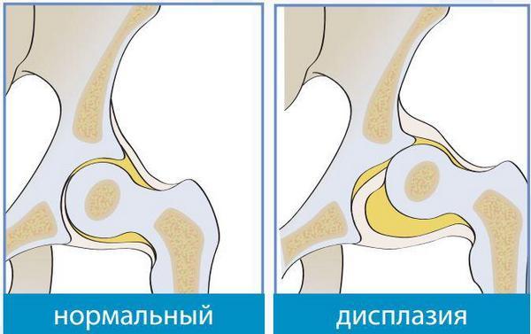 Противопоказания при дисплазии тазобедренных суставов заедание и хруст в суставах