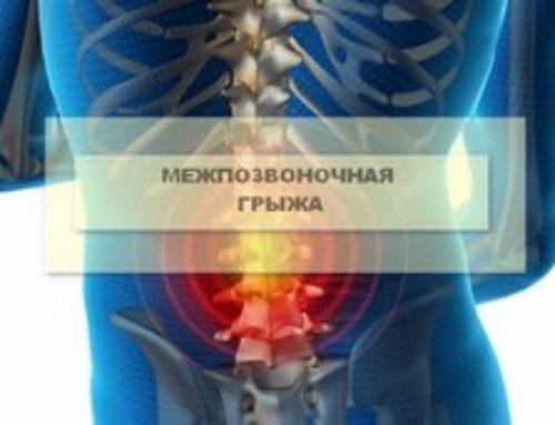 Межпозвоночная грыжа поясничного отдела: факторы риска, лечение и прогноз