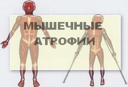 группа мышечных атрофий