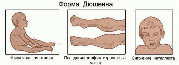форма атрофии симптомы