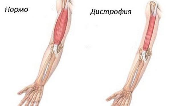вид атрофированной мышцы и нет