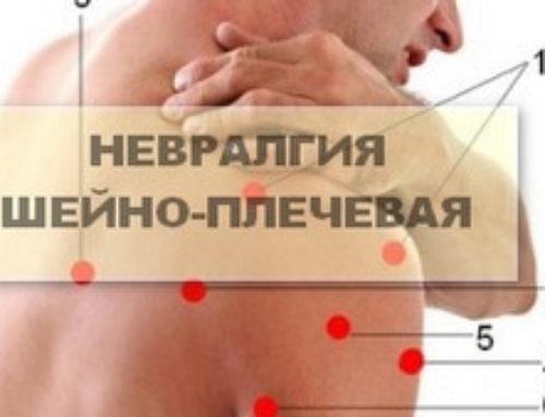 Шейно-плечевая невралгия: симптомы и особенности диагностики