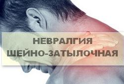 невралгия шейно-затылочной области