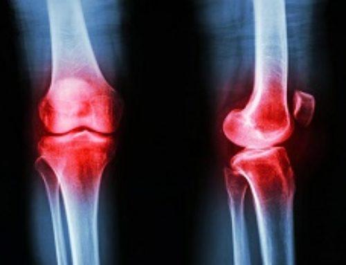 Коленный остеоартрит: инъекции стероидов не приносят никакой пользы