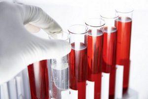 исследование крови в пробирках