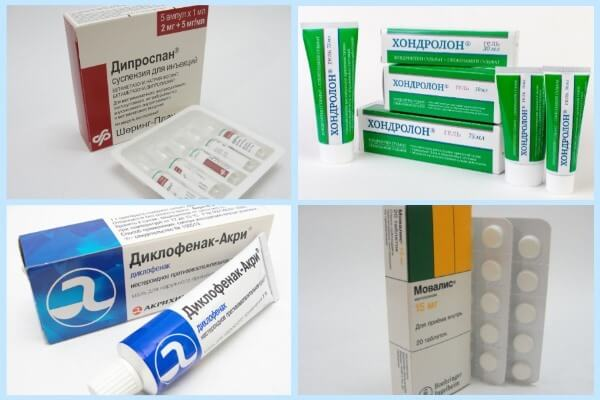 медикаменты для лечения суставов