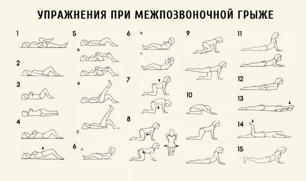 комплекс упражнений лечебной физкультуры