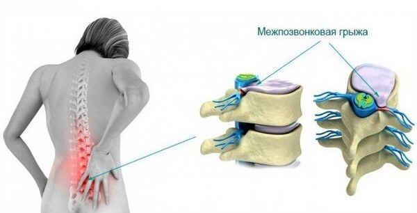Лечение межпозвонковой грыжи без операции