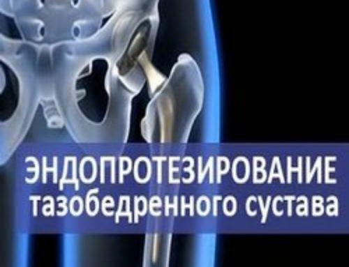 Реабилитация после эндопротезирования тазобедренного сустава: важные моменты
