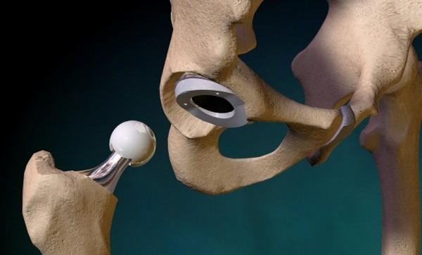 операция эндопротезирования