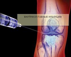 уколы в коленный сустав