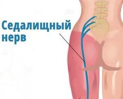 заболевание седалищного нерва
