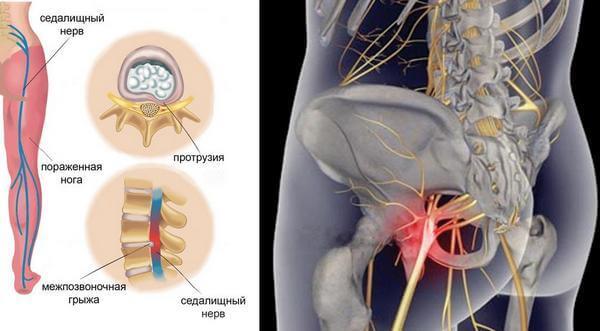 воспаление седалищного нерва причины