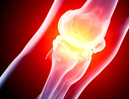 Избыточный вес связан с более высокой степенью синовита у людей с ревматоидным артритом