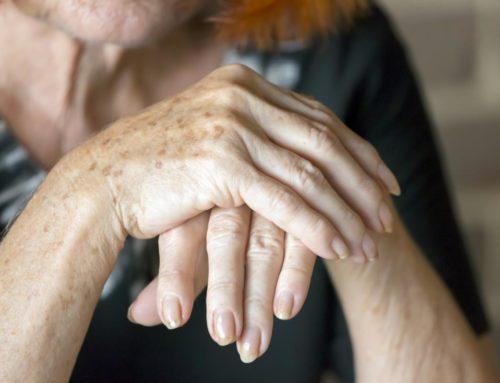 Может ли витамин D помочь держать ревматоидный артрит на расстоянии?
