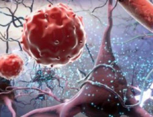 У пациентов с волчанкой наблюдаются измененные клеточные белки