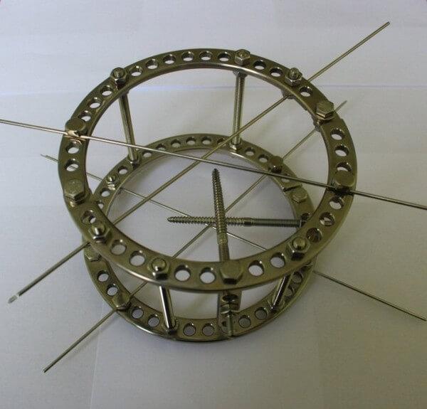 Из чего сделан аппарат илизарова. Аппарат Илизарова для сращивания и удлинения костей. Как ставят аппарат Илизарова при лечении переломов