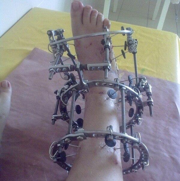 аппарат илизарова на руке при переломе