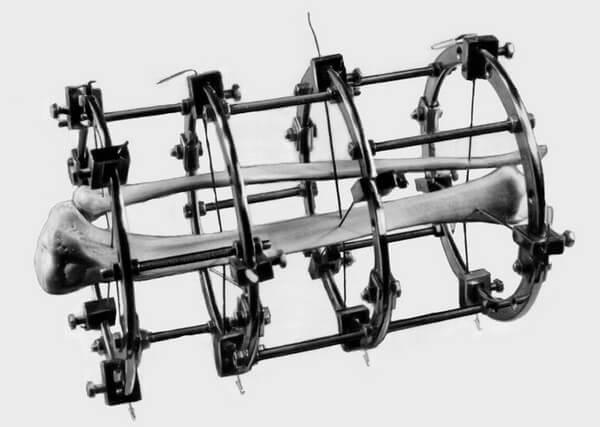 схематичное расположение кости в аппарате