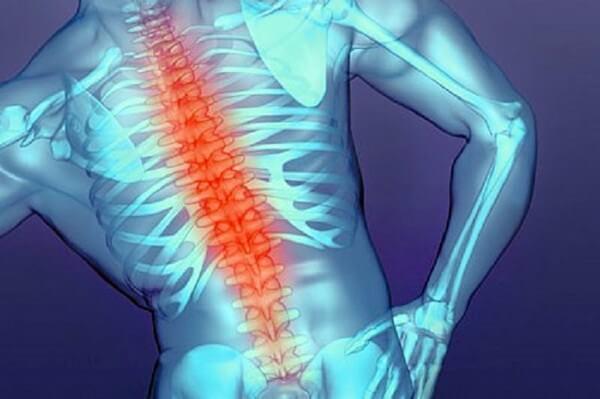 боль в спине и позвоночнике