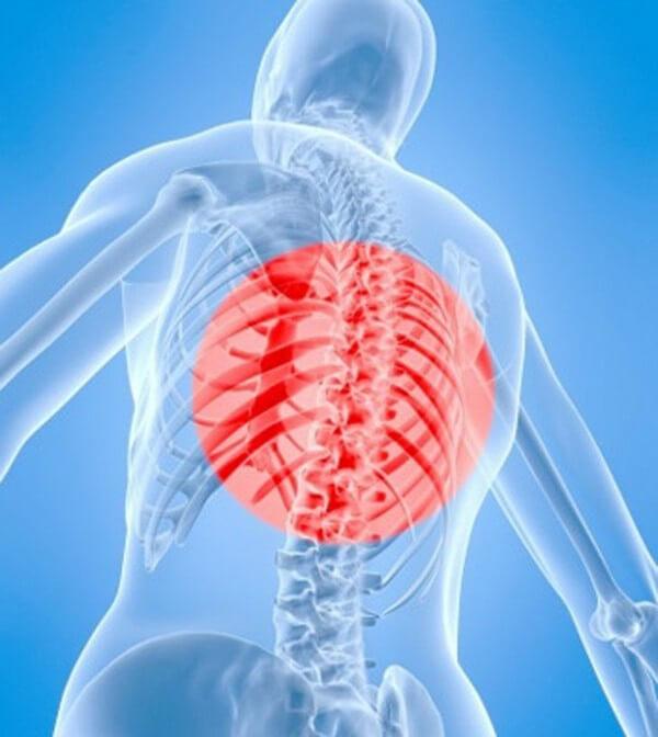 Болит и горит грудной отдел позвоночника