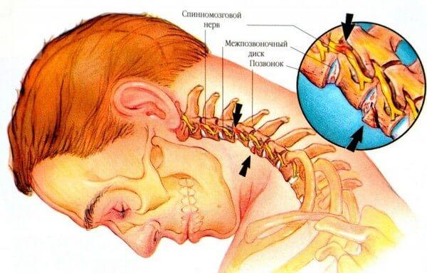 локализация боли в шейном отделе