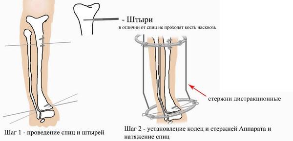 установка аппарата Илизарова