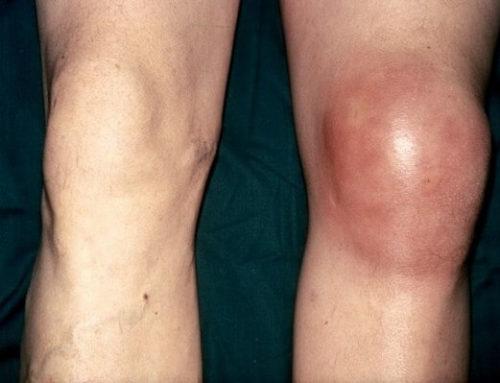 Что такое бурсит коленного сустава: симптомы и лечение заболевания