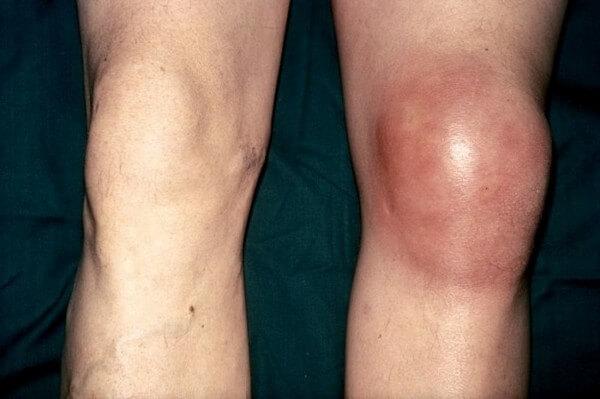Супрапателлярный бурсит коленного сустава симптомы и лечение — Суставы
