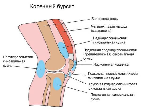 коленный бурсит