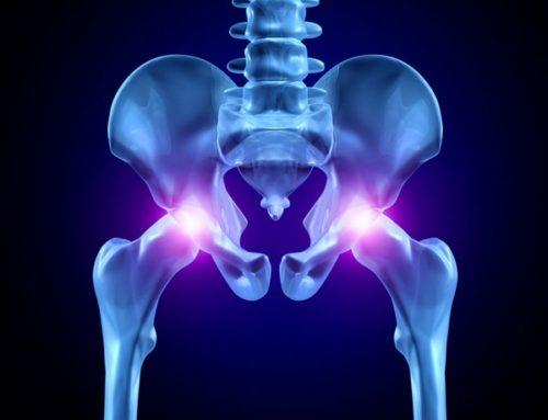 Деформирующий артроз тазобедренного сустава: обзор заболевания