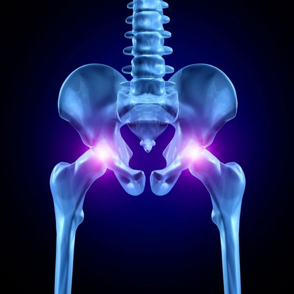 Деформирующий артроз тазобедренного сустава симптомы и лечение