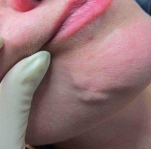 аллергическая реакция на препарата