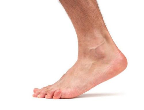 Растяжение связок голеностопа: чем лечить в домашних условиях, рецепты мазей