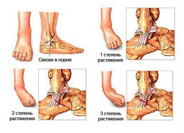 Растяжение связок голеностопного сустава народное лечение