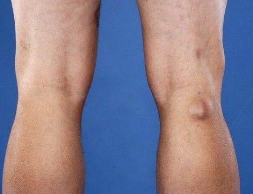 Киста Бейкера коленного сустава: что это такое и как лечить?