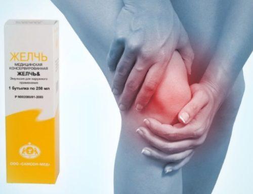 Как правильно лечить артроз коленного сустава медицинской желчью