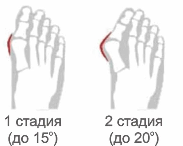 Болит косточка на ноге около большого пальца к какому врачу идти