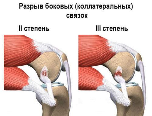Разрыв связок коленного сустава: определение тяжести и восстановление
